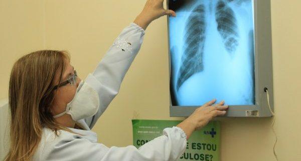 O estudo foi realizado na Policlínica Cardoso Fontes, no Amazonas. Foto: Eduardo Gomes (ILMD/Fiocruz Amazônia)